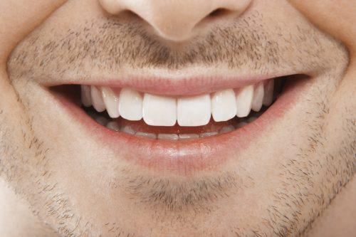 Closeup of man's teeth