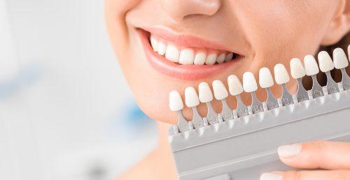 Woman getting teeth whitening